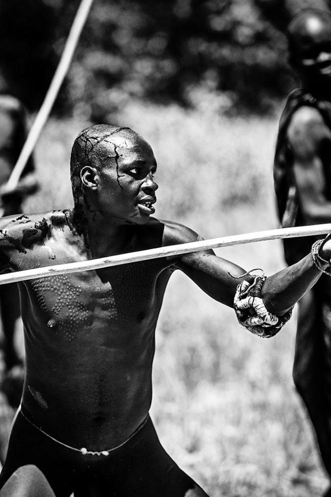 ethiopië-suri-donga-gewond